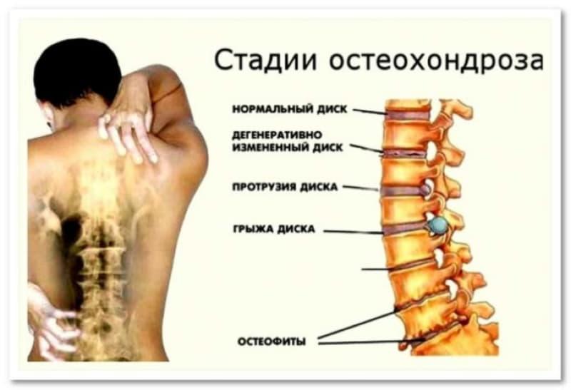 Гимнастика Бутримова от головных болей при сидячей работе (видео)