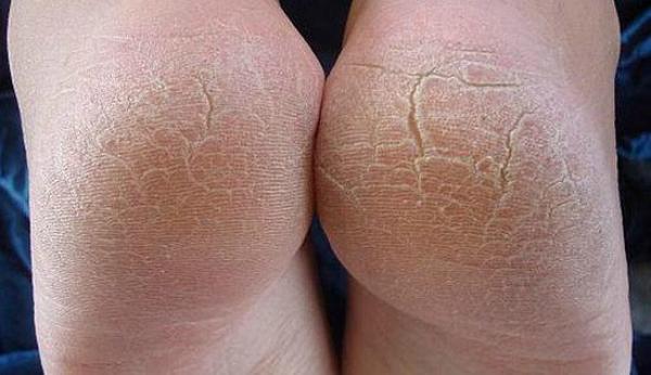 Вот способ сделать пятки мягкими, как кошкины лапки: сухость и трещины остались в прошлом!