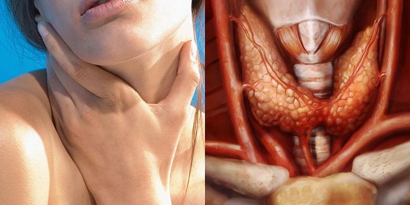 Щитовидка не халтурит и не шалит. Чудо-коктейль для тех, кто уже успел заметить проблему.
