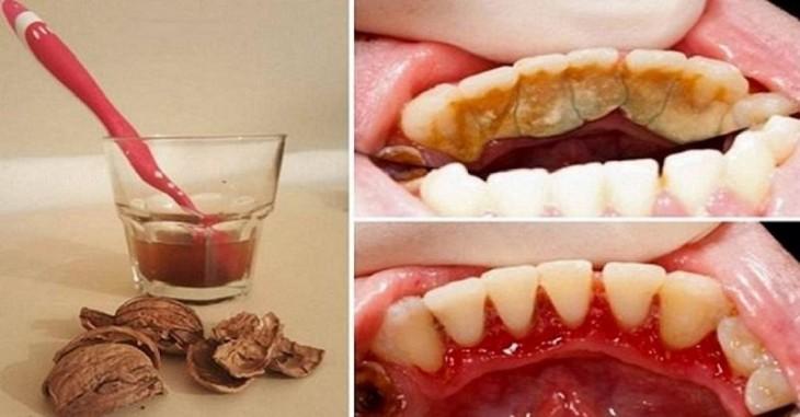 Как избавиться от зубного камня при помощи одного простого средства