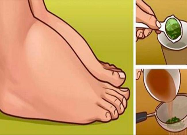 Оттекшие лодыжки и ступни больше не проблема! Это сресдтво лечит не симптомы, а первопричину!