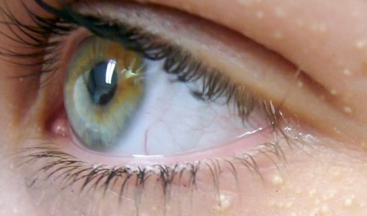Ты даже не представляешь, о чём свидетельствует появление белых точек вокруг глаз!