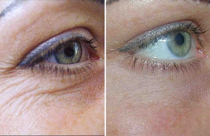 плеяна крем вокруг глаз