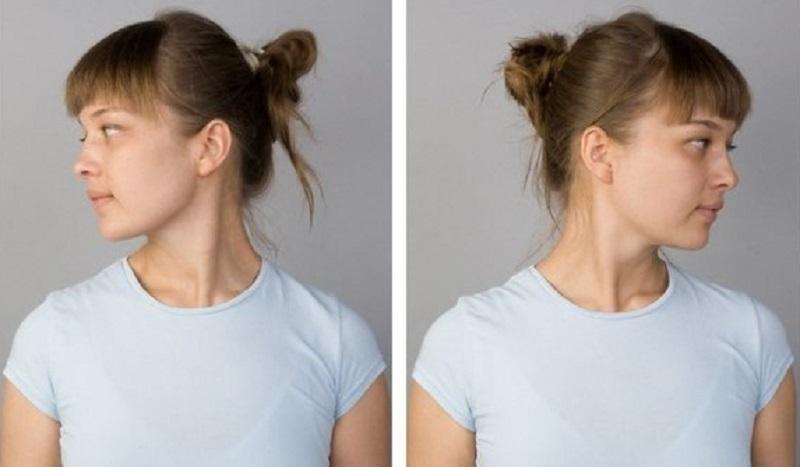 Мышечные зажимы шеи и спины: избавиться раз и навсегда