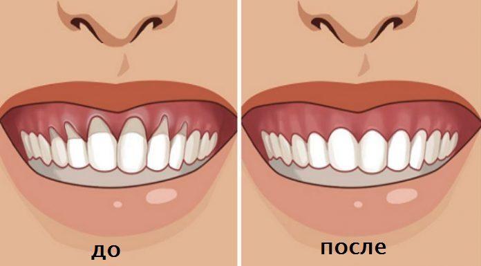 Вы заметили оголение шейки или корня зуба? Немедленно начинайте лечение — 6 натуральных рецептов…