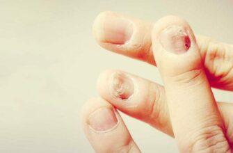 10 симптомов ногтей и то, что они означают для вашего здоровья!