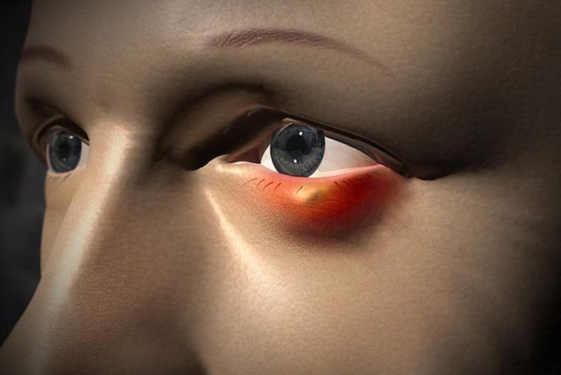 Ячмень на глазу: 8 актуальных и безопасных способов борьбы
