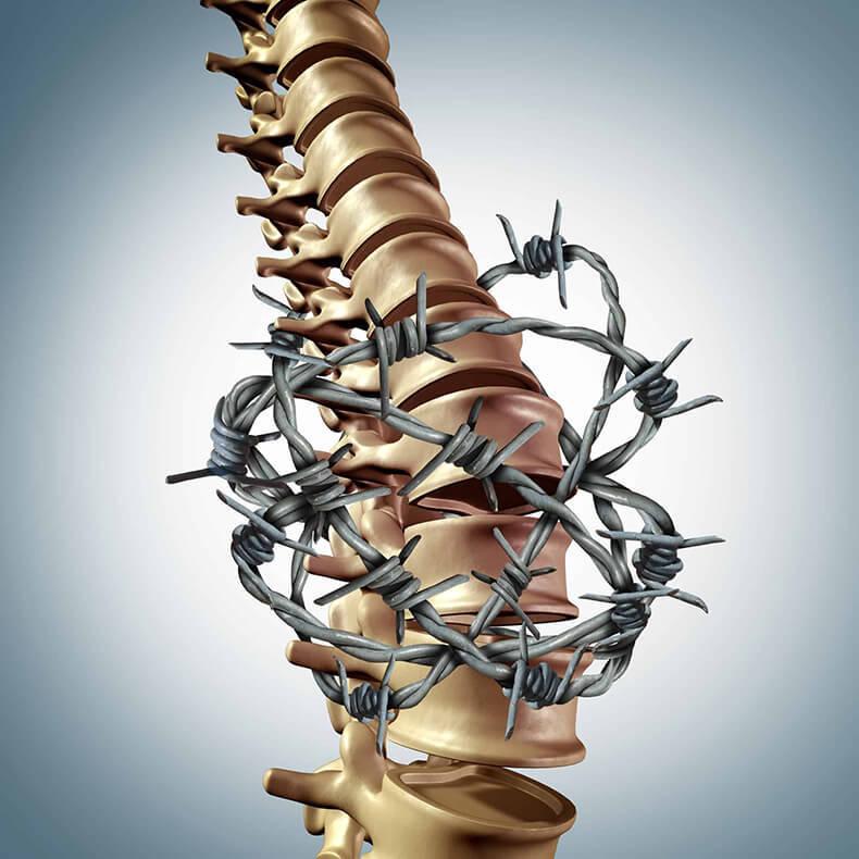 5 упражнений от боли в спине: Советы специалиста по акупунктуре
