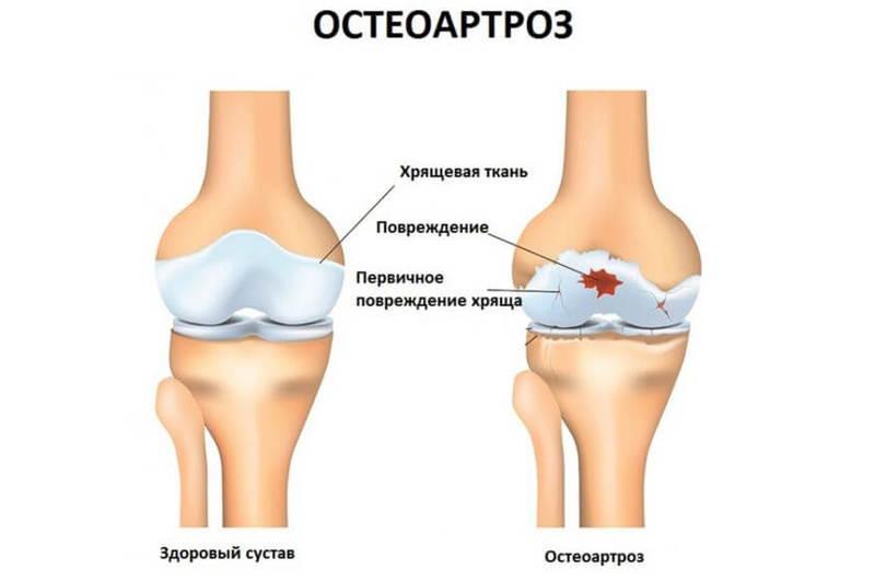 Остеоартроз: 13 доступных способов лечения