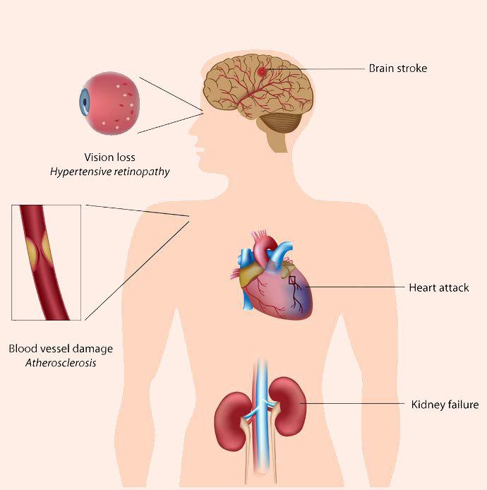 Гипертония — болезнь неотреагированных эмоций